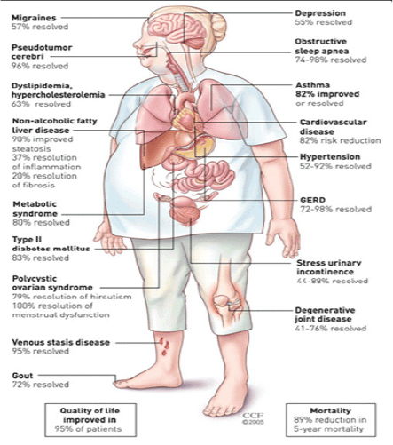 Benefits-of-bariatric-surgery.png