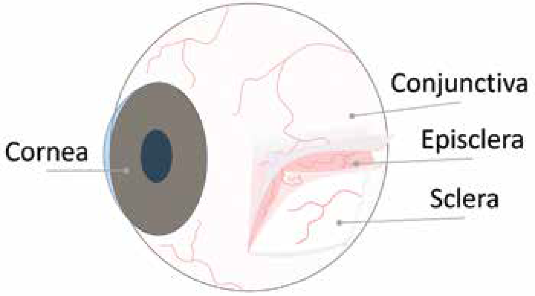 Episcleritis and Scleritis 1-01.png