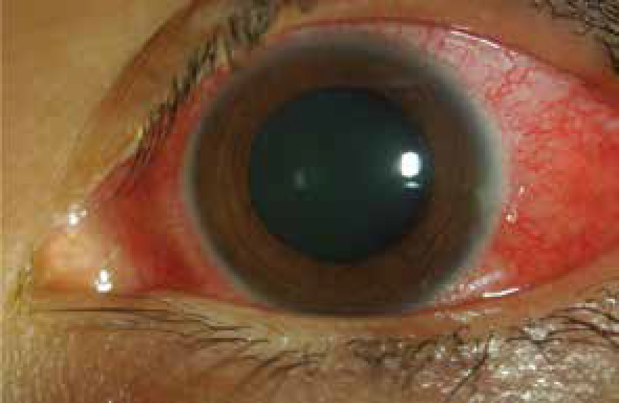 Episcleritis and Scleritis 2-01.png