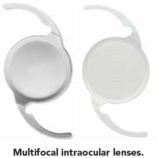 Intraocular Lenses And Refractive Options 2-01.png