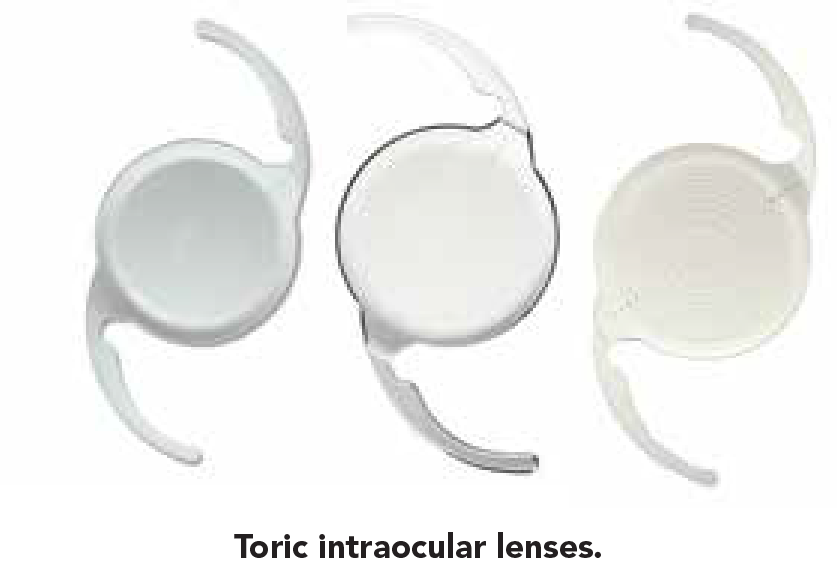 Intraocular Lenses And Refractive Options 3-01.png