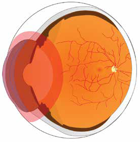 Uveitis (Anterior) 1.png