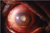 Uveitis (Anterior) 2.2.png