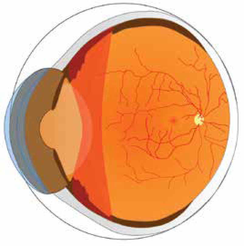 Uveitis (Intermediate)-01.png